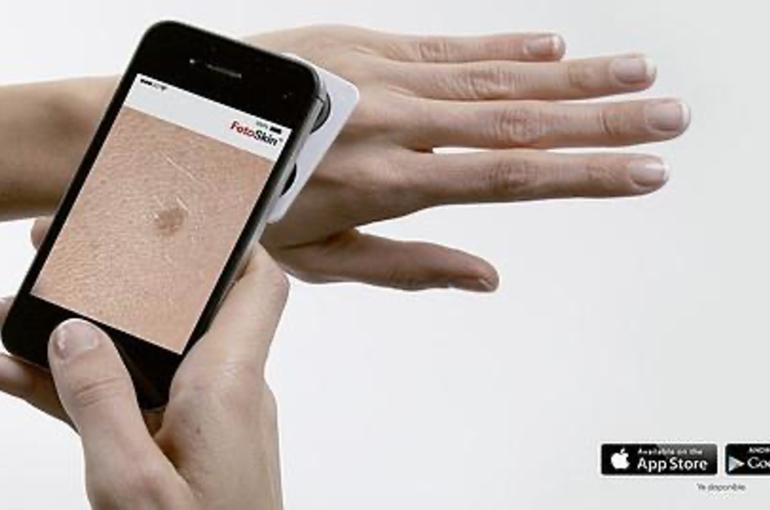 Google usa su inteligencia artificial para identificar problemas en la piel